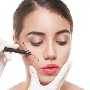 Cheek Implant Treatment in Dubai