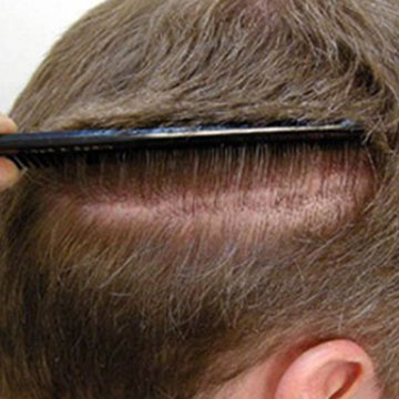 Strip Hair Transplant