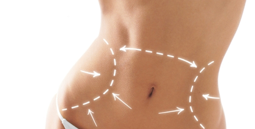Laser Liposuction to Remove Fat