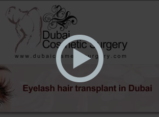 Eyelash & EyeBrow Hair Transplant