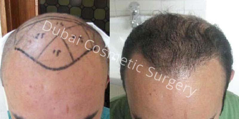 hair-transplant-10