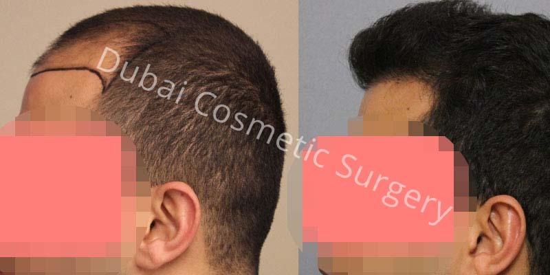 hair-transplant-11