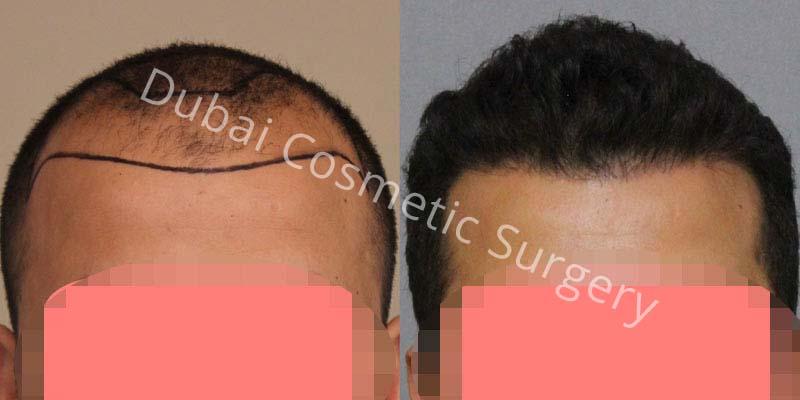 hair-transplant-13