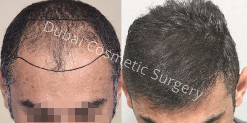 hair-transplant-15