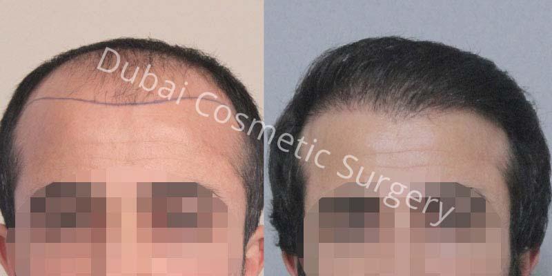 hair-transplant-18