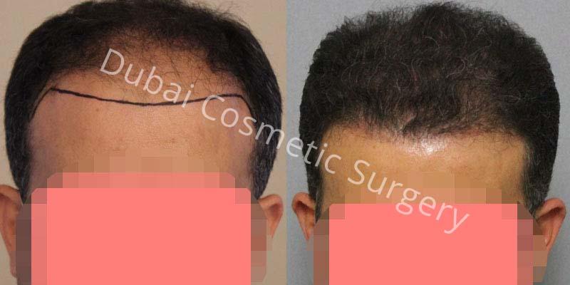 hair-transplant-20