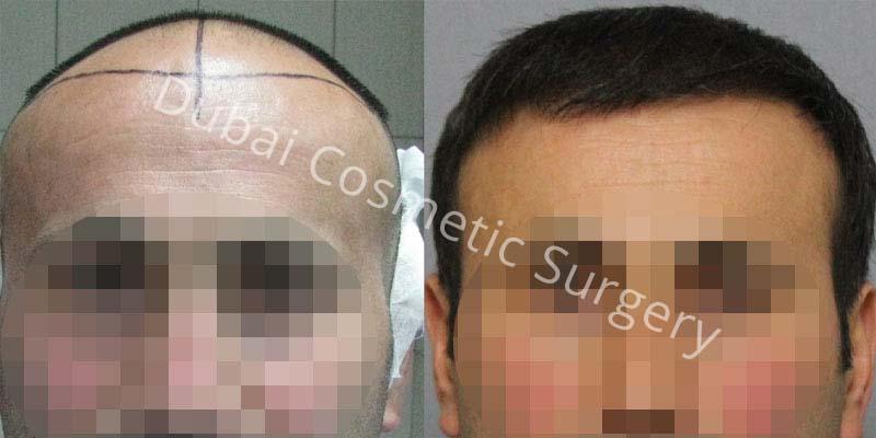 hair-transplant-22