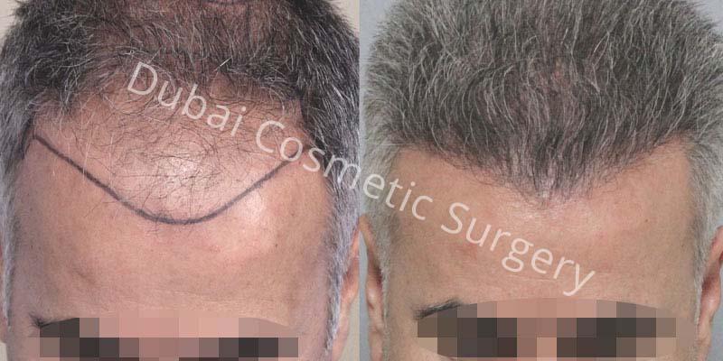 hair-transplant-25