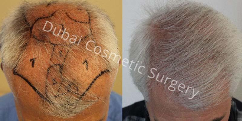 hair-transplant-26