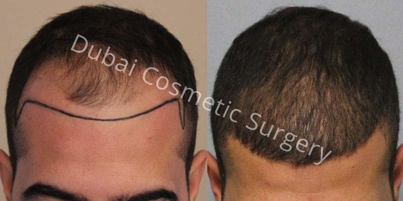 hair-transplant-29