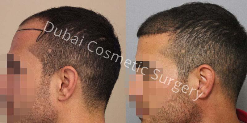 hair-transplant-30