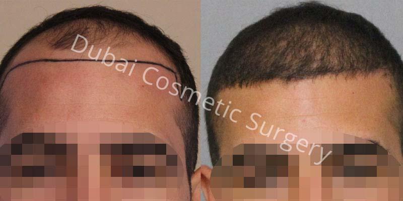 hair-transplant-31