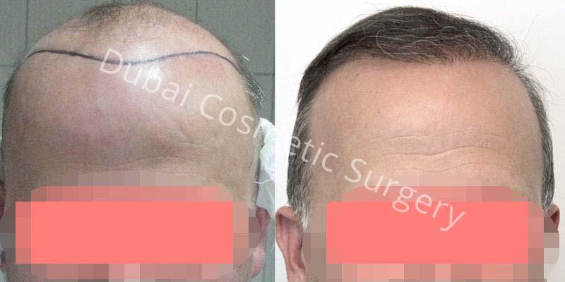 hair-transplant-34