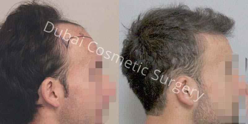 hair-transplant-48