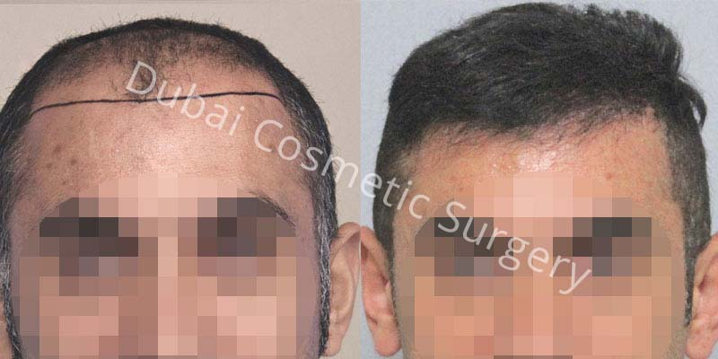 hair-transplant-55