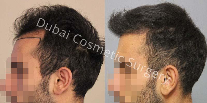 hair-transplant-9