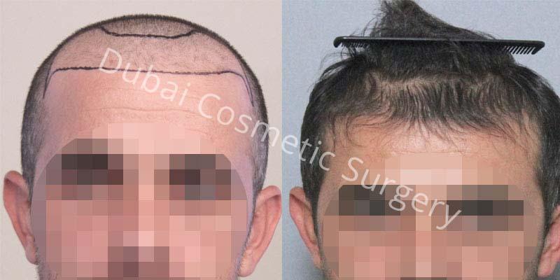 hair-transplant1