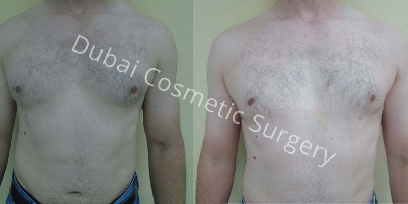 Gynecomastia-Treatment