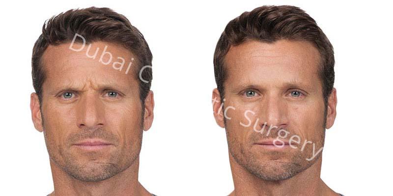 wrinkle-treatment-4