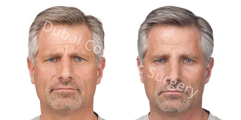 wrinkle-treatment-5