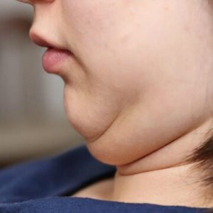 Double-chin-liposuction