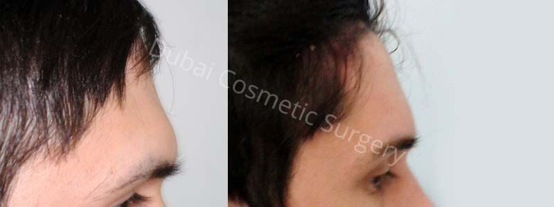 forehead lift before after