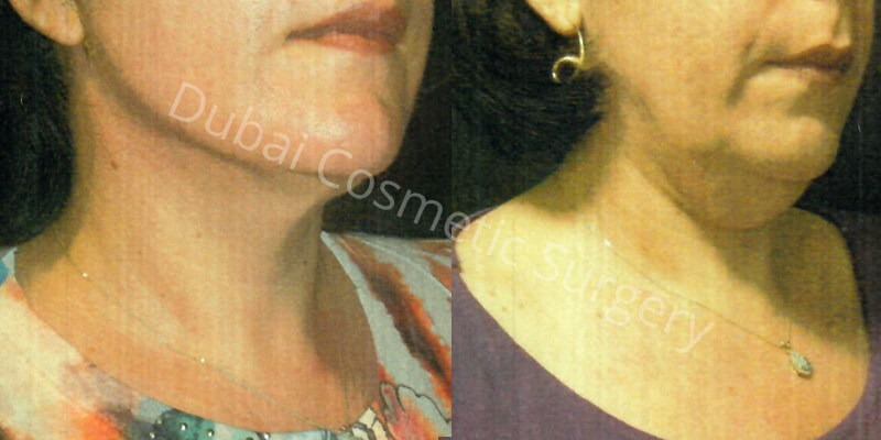 neck lift before after