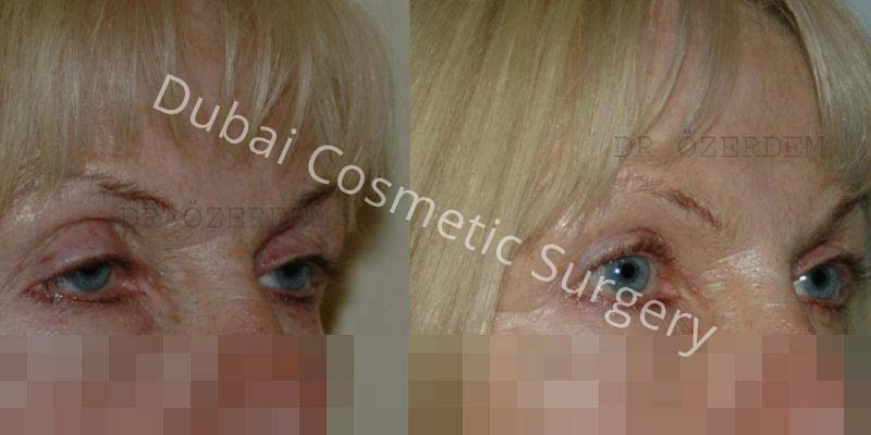 Eyelid-Surgery-11-1