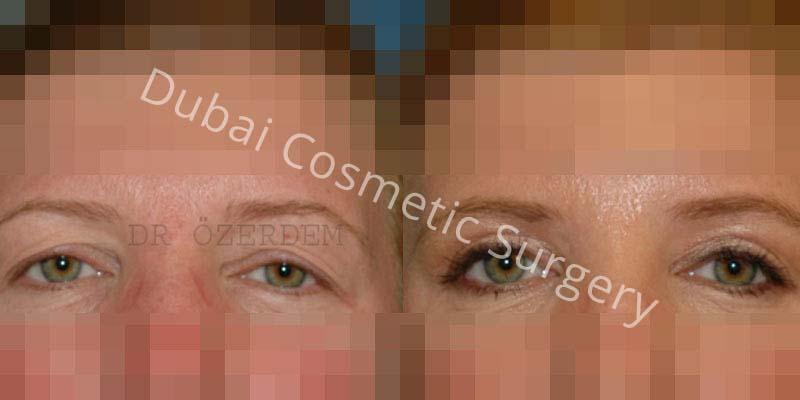 Eyelid-Surgery-4-1