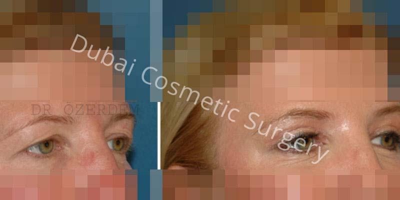 Eyelid-Surgery-5-1