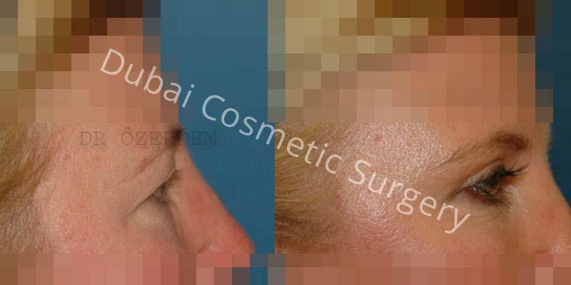 Eyelid-Surgery-6-1