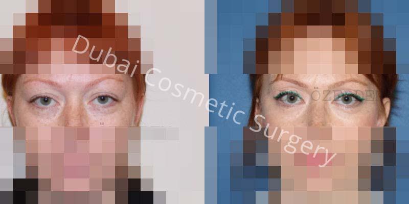 Eyelid-Surgery-7-1