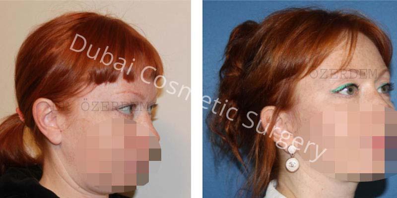 Eyelid-Surgery-8-1