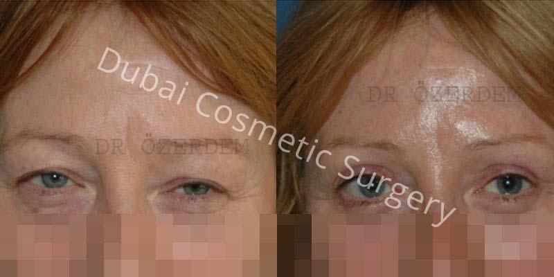 Eyelid-Surgery-9-1