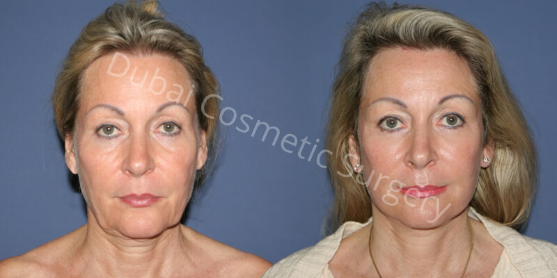 Neck-Lift-Facelift-Eyelid