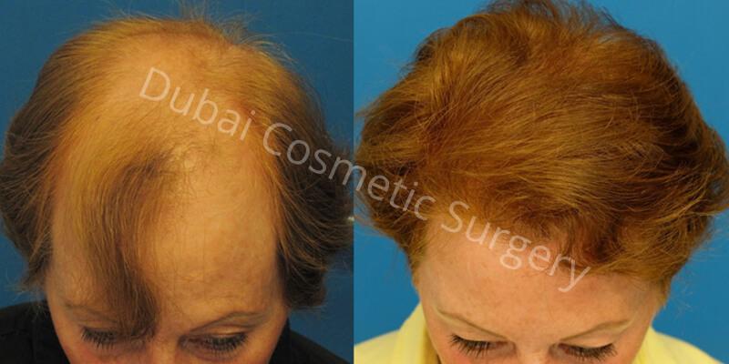 hair transplant 11