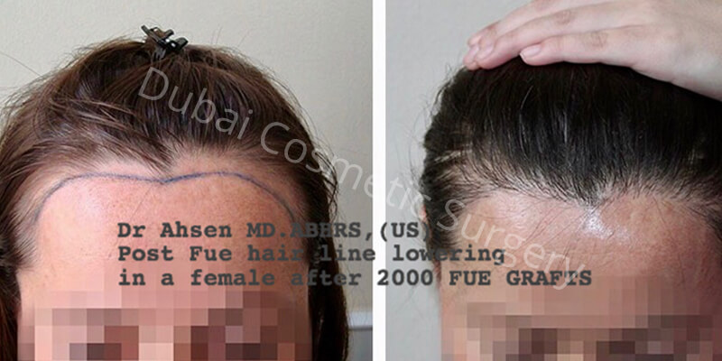hair transplant before- after 2