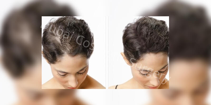 hair transplant before- after4