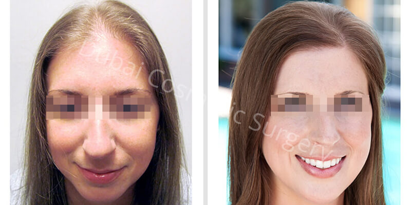 hair transplant before- after