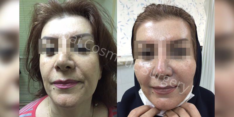 lips augmentation befor-after