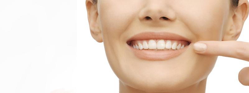 انفزالاين واقواس الاسنان مالفرق