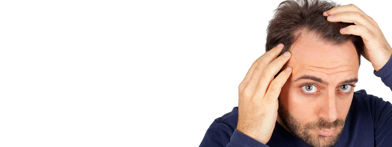 اهم 10 آثار جانبية لجراحة زراعة الشعر للرجال