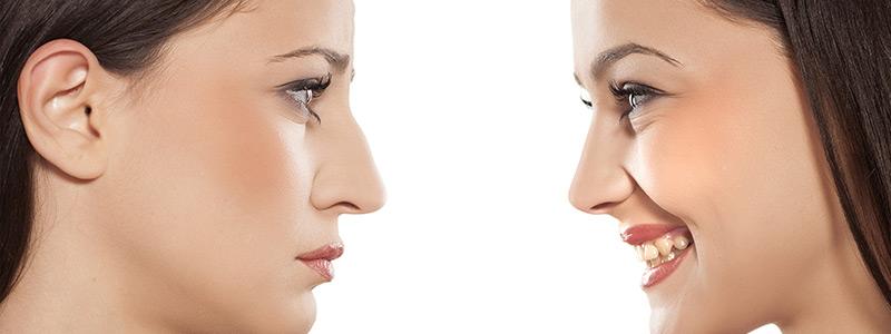 كيف تتجنب الآثار الجانبية لجراحة الأنف