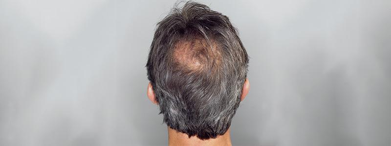 مالعلاقة بين تساقط الشعر والادوية ونمط الحياة؟