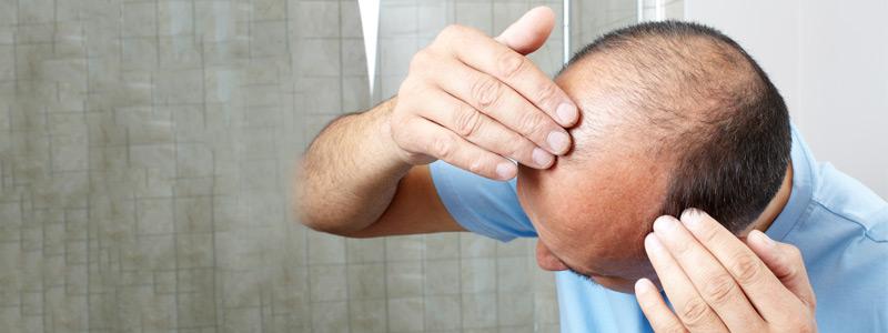 ان كنت تعاني من تساقط الشعر؟ فلا داعي للقلق بعد الآن!