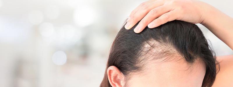 مدى فعالية علاج بي ار بي في اعادة نمو الشعر