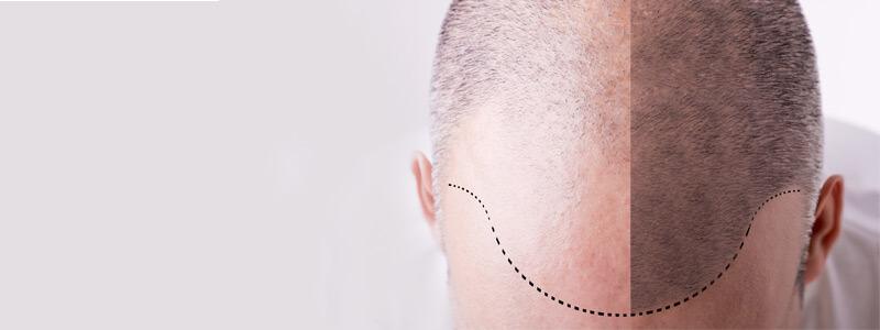 الانتعاش بعد زراعة الشعر