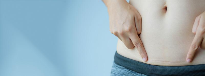 الندوب بعد شفط الدهون